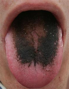 Hairy_tongue